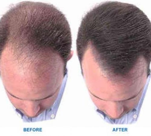 hair-loss-tretment-in-ayurveda