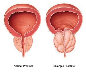 prostate-health-normal-vs-enlarged-prostate