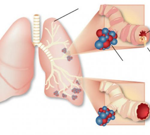 respiratory-health-asthma_lungs